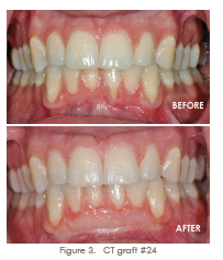 trammell periodontics ct graft