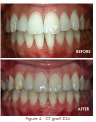 trammell periodontics