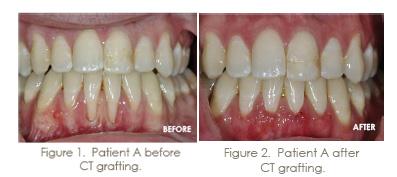 trammell periodontics grafting