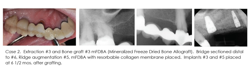 extraction and bone graft dental periodontal surgery